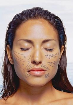 Aplicacao de Sculptra Sao Paulo especialista Dermatologista