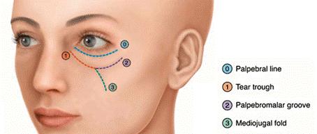 Preenchimento de olheira com ácido hialurônico medico dermatologista sp