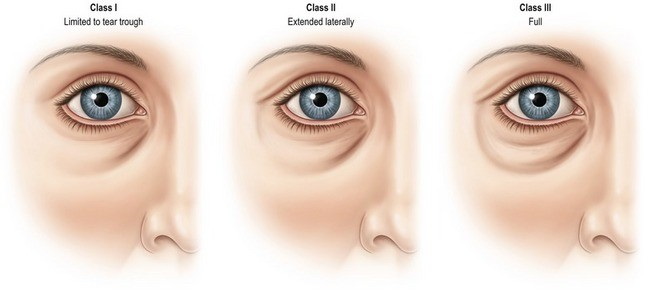 Preenchimento de olheira com ácido hialurônico