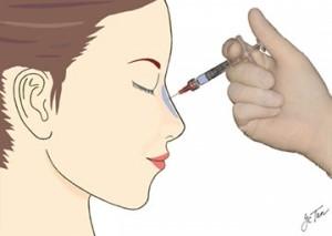 Preenchimento do nariz com ácido hialurônico