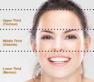 preenchimento rosto terco inferior mandibula e queixo