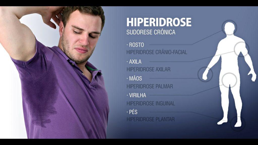 Hiperidrose_axilar- aplicacao de BOTOX SAO PAULO