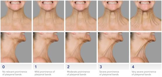 Tratamento para pescoço e colo escala de envelhecimento