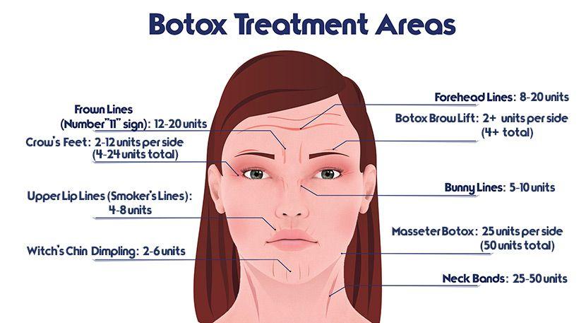 botox-tratamento Osasco aplicação de toxina botulínica