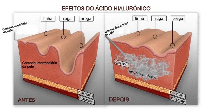 Aplicacao acido hialuronico sp Sao Paulo - Injectors (6)
