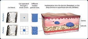Preenchimento com acido hialuronico SP sao paulo - Injectors