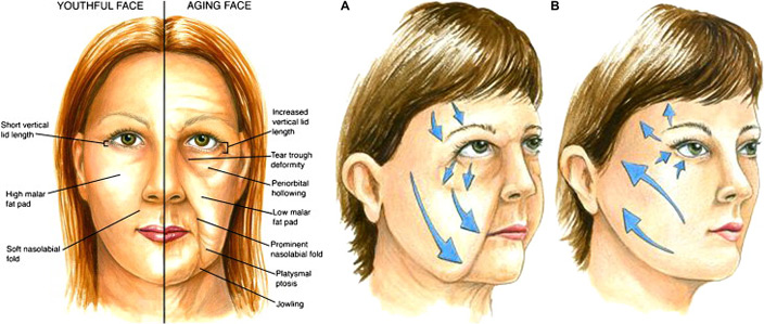 quanto custa harmonizacao facial